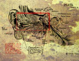 inner ear exploration