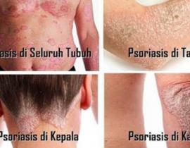 cara menghilangkan psoriasis di kulit kepala secara alami