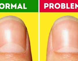 13 Serious Health Problems the Moons on Your Nails Warn You About