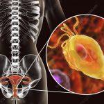 Trikomoniasis Penyakit Berbahaya